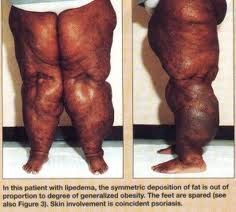 Stages of Lipedema.